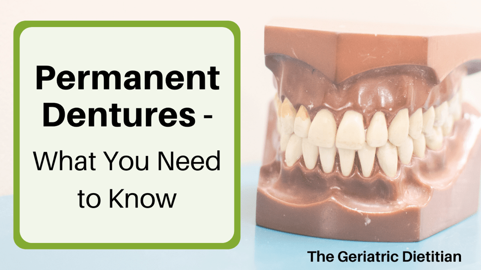 Permanent Dentures What You Need to Know Featured Image