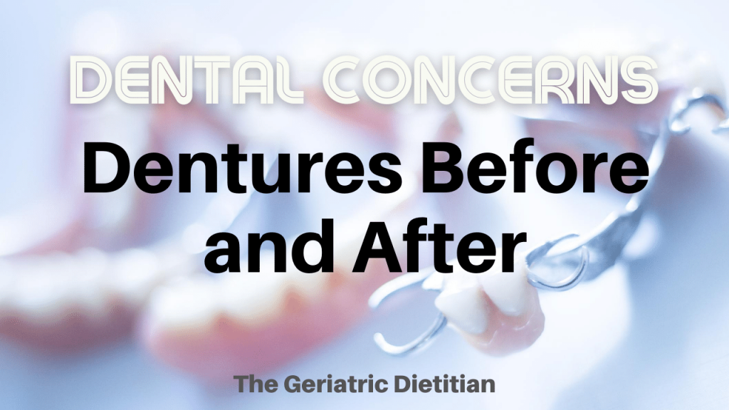 Dental Concerns Dentures Before and After
