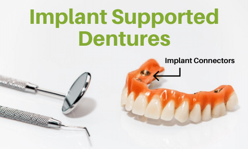 implant supported dentures overdentures
