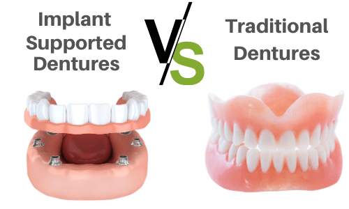implant supported dentures vs traditional dentures